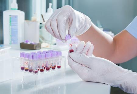 laboratorio: laboratorio m�dico Foto de archivo