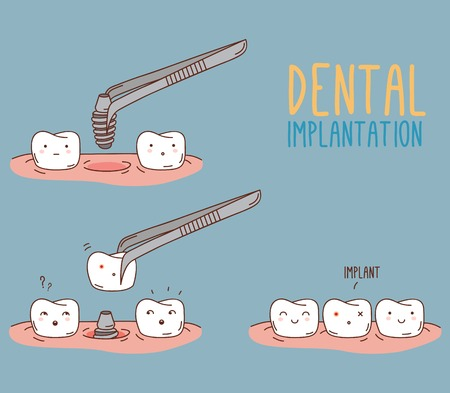 Comics about tooth replacement. Vector illustration for children dentistry and orthodontics. Cute vector characters. Dental implantation. Care and treatment. Vettoriali