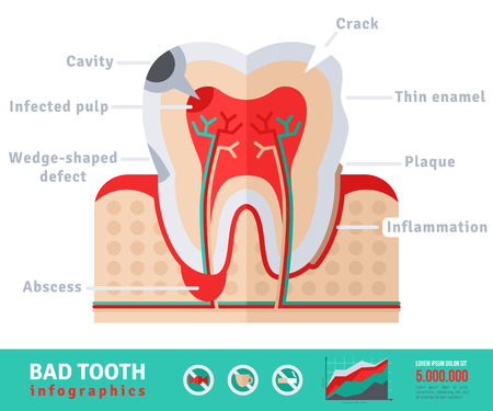 cementum: Bad tooth anatomy flat icon concept. Teeth infographics.Vector illustration. Infected pulp and nerves, thin enamel, plaque. Abscess. Illustration