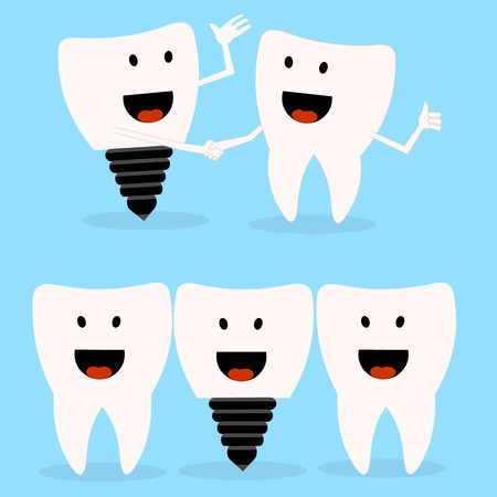 dental implants: tooth and dental implant