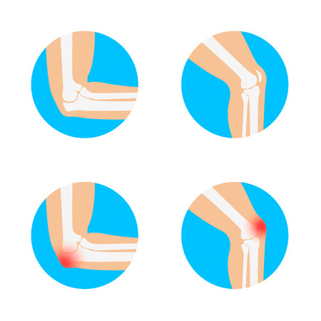 dolor muscular: Rodilla y codo ilustración vectorial. dolor en el codo. Dolor de rodilla. Anatomía de la rodilla y el codo. Vectores