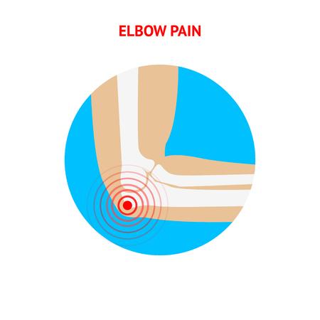 elbow pain: Elbow pain. Elbow pain icon isolated on white background. Human Elbow. Vector design element.
