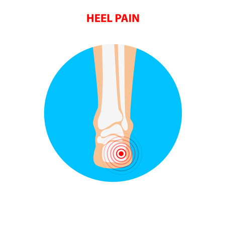 Heel pain. Human ankle joint icon back view. Vector illustration.