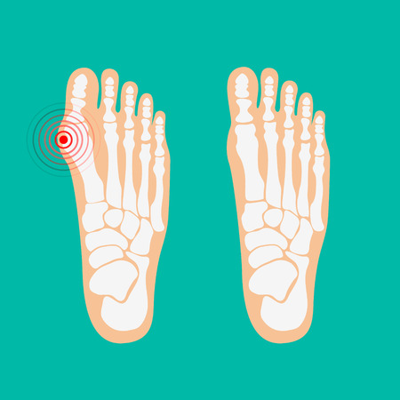 big toe: Valgus deformity of the big toe. Foot health care. Vector illustrations.
