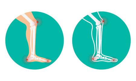 convulsión: El dolor en las piernas. dolor en la rodilla, dolor en el talón. Ilustración del vector.
