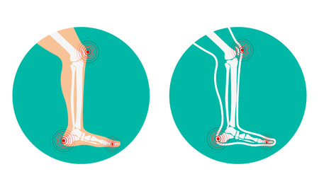 Pain in legs. knee pain, heel pain. Vector illustration. Illustration