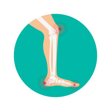 zones: Human leg pain zones. Design elements for infographic. Vector illustration. Illustration