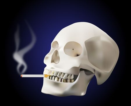 bone cancer: think about what smoking can do to You