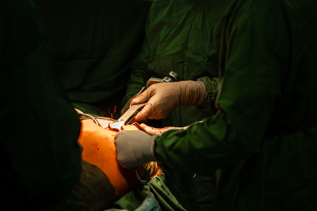 Patients and teamwork during hip replacement surgery in the operating room. Reklamní fotografie - 124720128