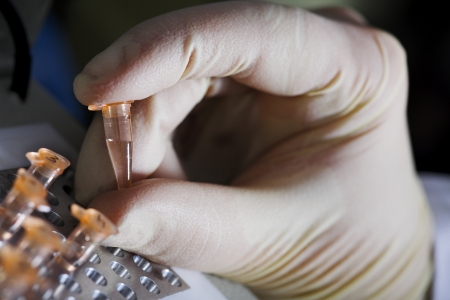 molecular: molecular biology. Hand with small tube Stock Photo