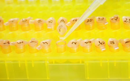 pipette and small plastic tubes photo