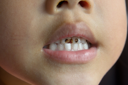 Child tooth decay. smiling children. Stock Photo