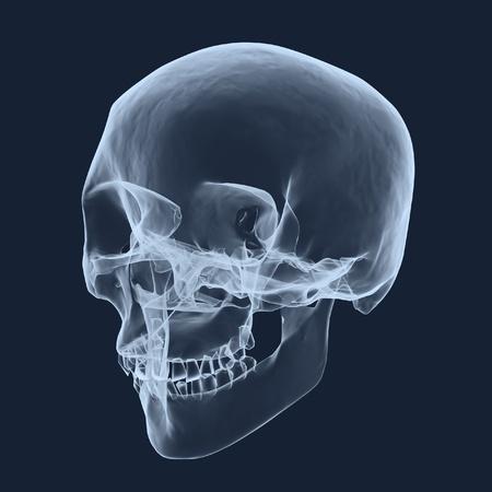 x rays negative: x-ray human head skull