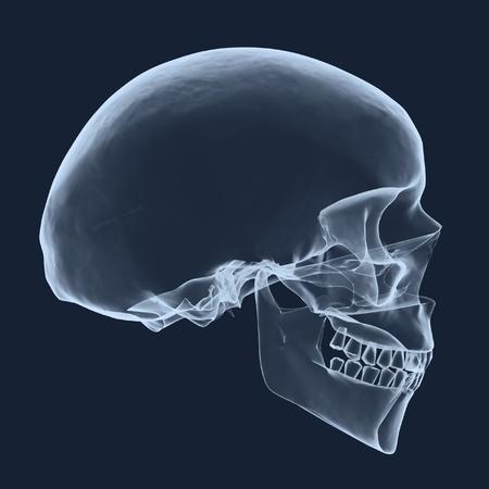 x rays negative: xray human head skull  Stock Photo