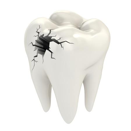 karies: tandvärk 3d koncept Stockfoto