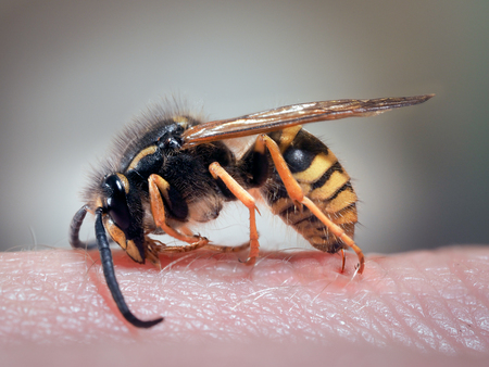 Wasp on a human hand. The sting of a wasp in the skin. Swelling, redness. macro