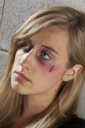 Close up image of an abused woman having a black eye and wound on her face photo