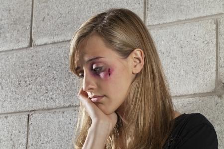 mujer golpeada: Una mujer maltratada triste pensar mientras se inclina en la cerca