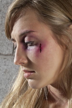 Black eye and wound of woman in a close-up image Standard-Bild