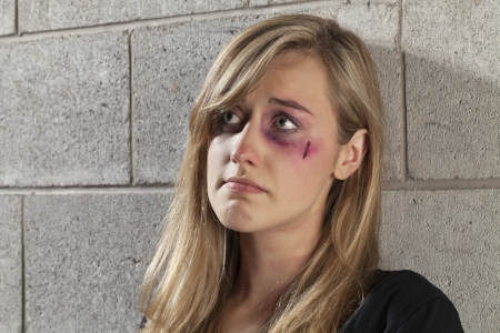 Close up image of sad abuse young woman photo