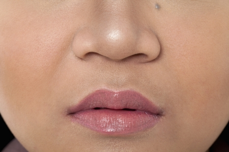 body concern: Detailed image of a female face, Model: Rachelle Vinluan