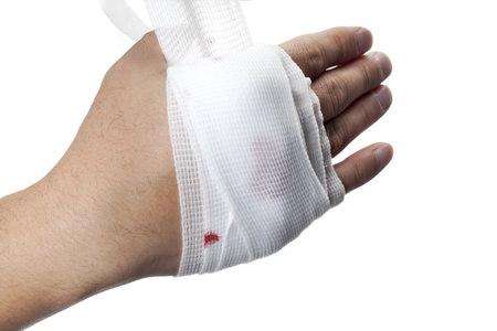 herida: Close-up shot de una mano humana envuelta con una venda medicina blanca.