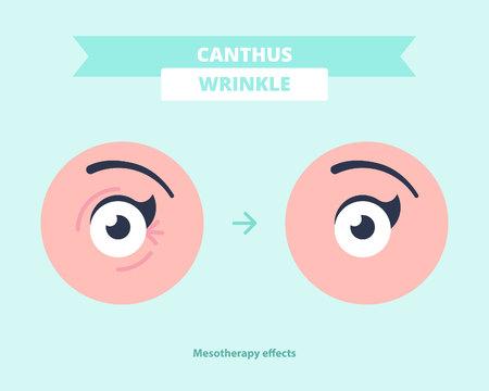 Eliminazione dei canthus weinkles dopo le procedure di mesoterapia
