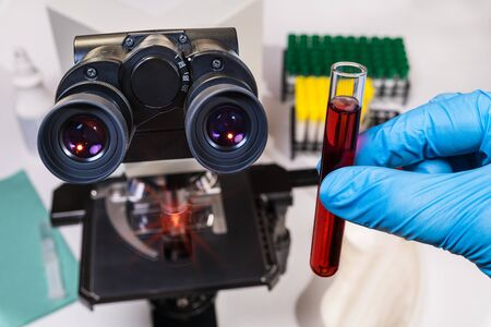 Laboratory optical microscope. Diagnostic test tube in hand with blue glove. Doctor analyzing clinical sample. Viral or bacterial infection. Scientific research of cancer, flu, or Chinese coronavirus. Stock Photo