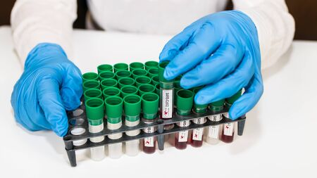 Laboratory blood sample tubes in rack. Positive or negative SARS-CoV-2 results. Lab assistant close-up in blue protective gloves. Pandemic coronavirus disease testing center. COVID-19 viral infection.