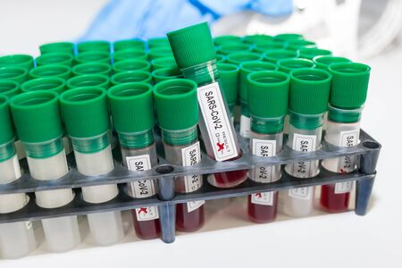 Coronavirus pandemic. Lab test tubes in rack. SARS-CoV-2 blood samples. COVID-19 testing clinic. Close-up of medical specimens in sterile plastic vials with green caps in laboratory. Global outbreak. Stock Photo