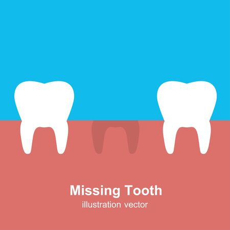 A Single Missing Tooth  Illustration Vector