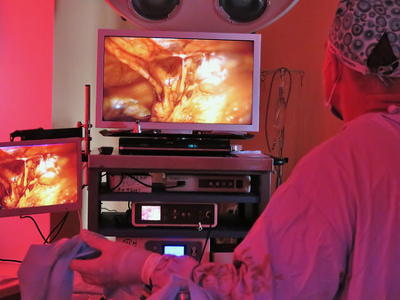 medical imaging: Odessa, Ukraine - October 9th, 2014 : The surgeon and the staff conducting laparoscopic surgery with an electronic monitor, this is a medical imaging technique used to visualize internal organs of control over the course of the operation.