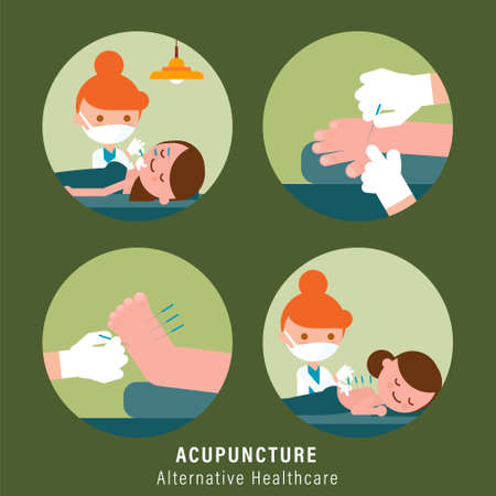 Person receiving acupuncture treatment from practitioner. Alternative healthcare illustration