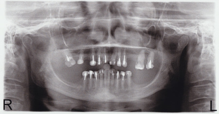 scanned picture of a X-ray of a human teeth Stock Photo - 27124331