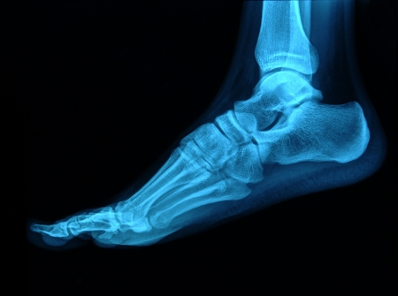 partes del cuerpo humano: Radiograf�a del pie