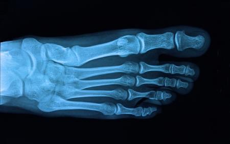 foot pain: Xray foot