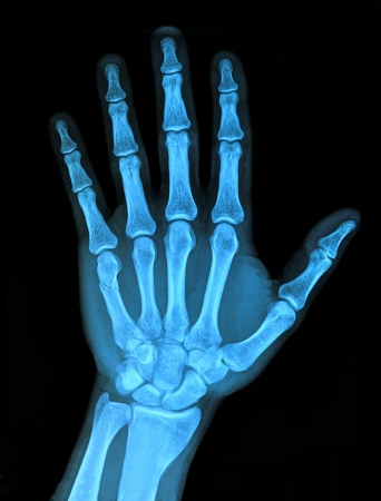 Hand x-ray photo