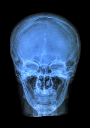 xray of human head skull Stock Photo - 19421707
