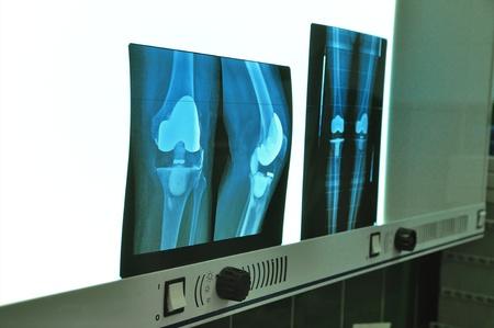 Xray knee prosthesis photo