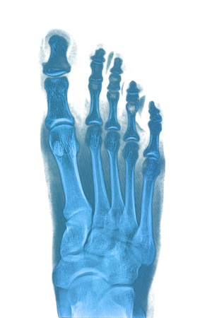 Xray foot Stock Photo - 19832670