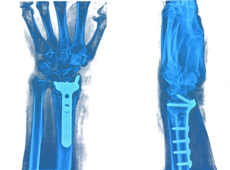 Hand xray image medical background Stock Photo - 19832671
