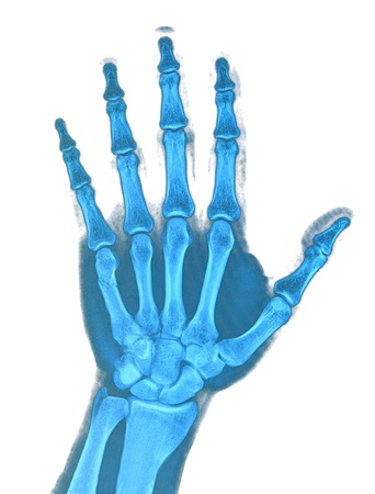 Hand xray image medical background Stock Photo - 19832666