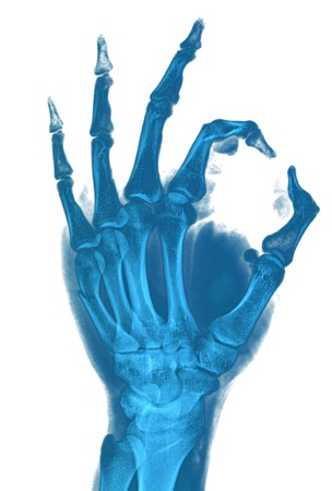 Hand X-ray image medical background photo