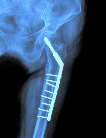 Hip xray image medical background photo