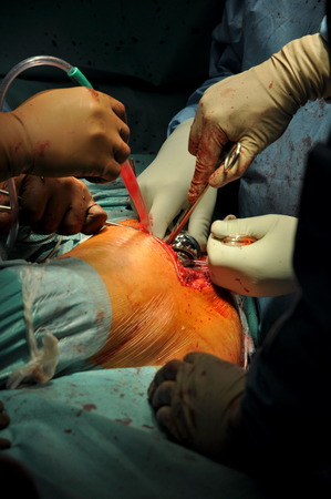 Prosthesis of the hip hospital operation photo