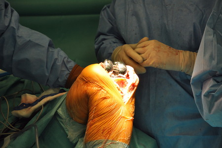 replacement: Prosthesis of the knee hospital operation