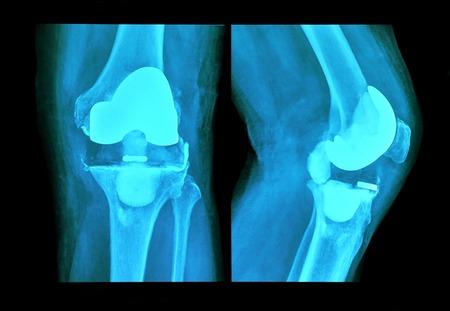 fractured: xray knee prosthesis