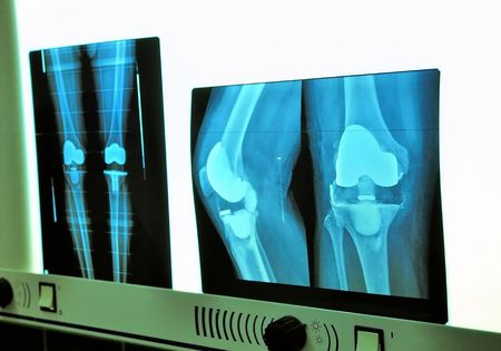 de rodillas: Prótesis de rodilla de la radiografía