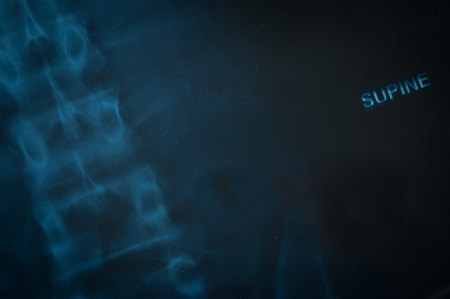 radiograph: X-Ray film of the patients in the hospital