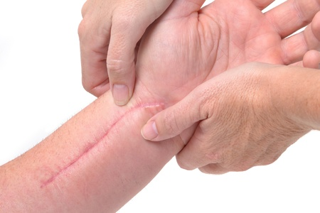 patient getting a therapy massage on scar Stock Photo